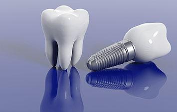 Dental Implant Treatment